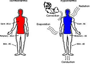 Hypothermia - Definition, Stages, Causes, Treatment