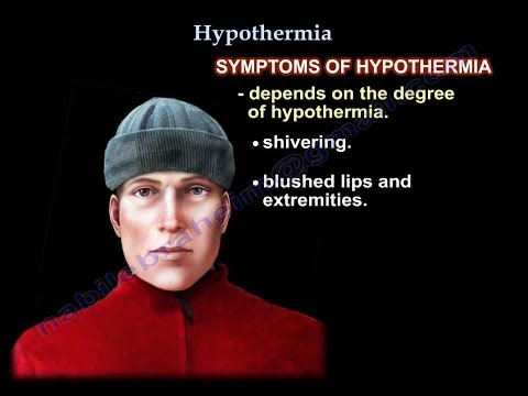 Chill out dude: What do you know about hypothermia