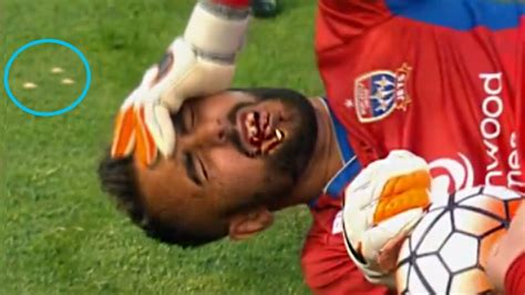 Top 15 Players Lost Teeth During Football Match - YouTube